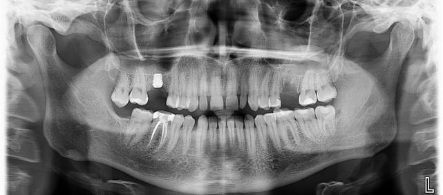 ortopantomogramma-optg_5b5088
