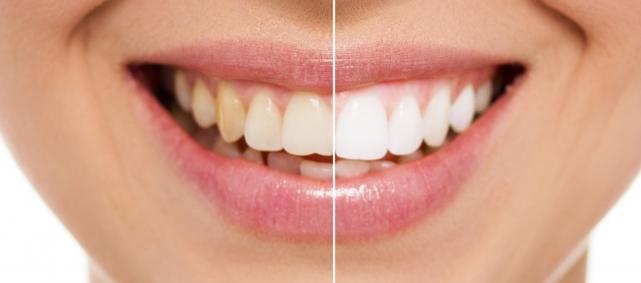 otbelivanie-zubov_5af48b