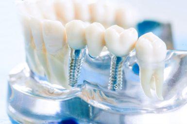 razbiraem-tonkosti-implantacii-zubov_5d6e5e