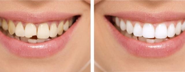 restavraciya-i-vosstanovlenie-zubov_5b16b8