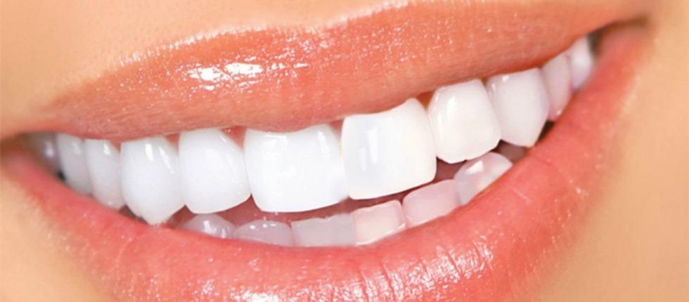 Способы отбеливания зубов
